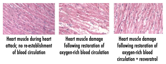 Comparison: heart muscle