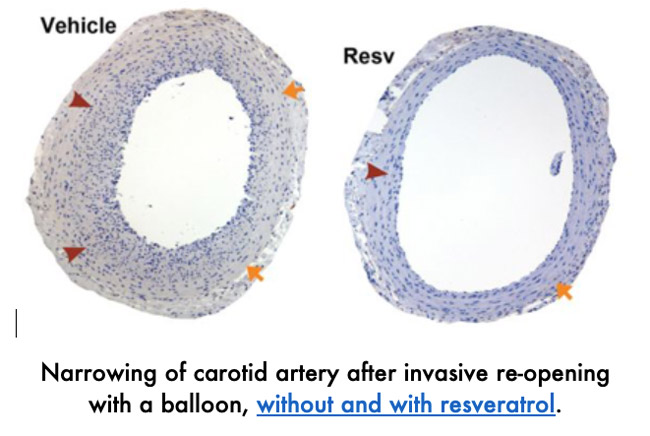 Comparison: narrowing of carotid artery: without and with resveratrol