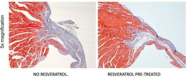 Comparison: Animal heart: Resveratrol pre-treated vs No Resveratrol