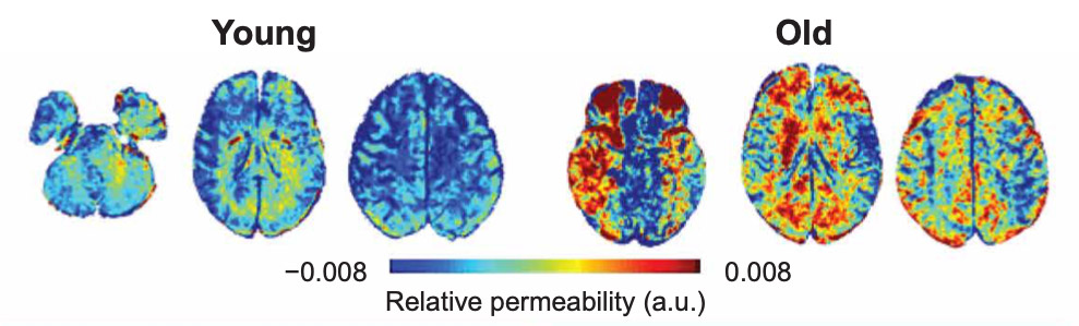 Brain Permeability: Young brains vs old