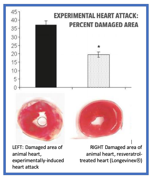 Comparison: heart attack damaged area