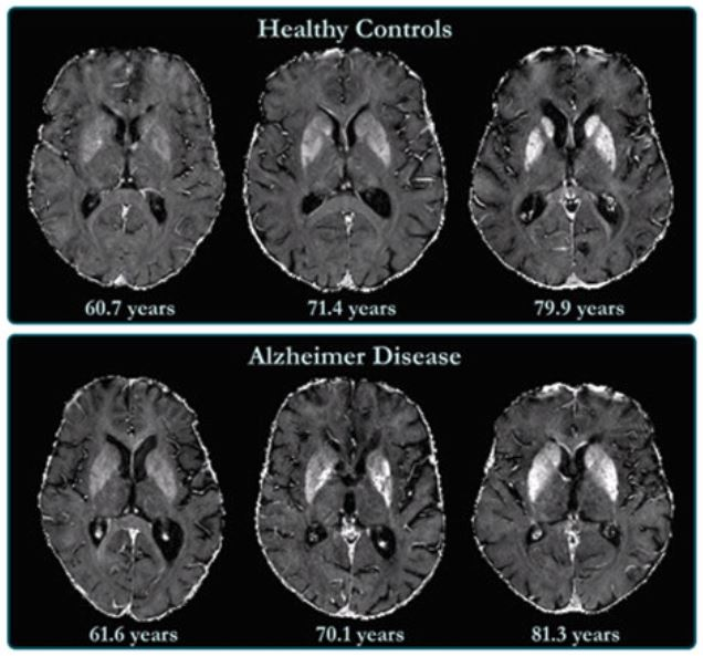 Brains scan: Healthy vs Alzheimer